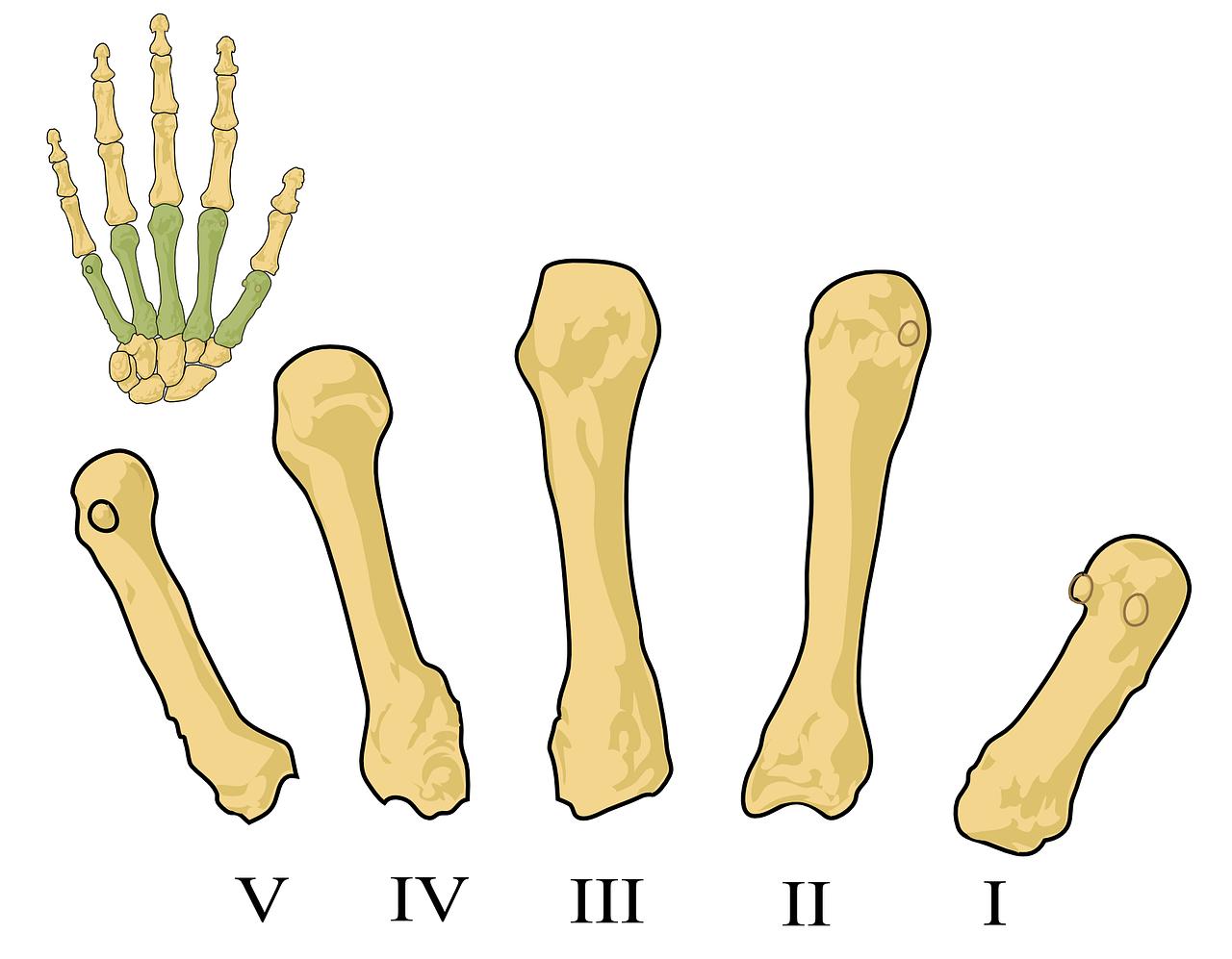 illustration-rhumatisme